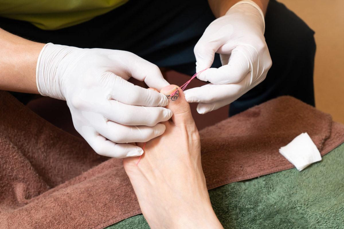 ツメフラ法による巻き爪矯正治療