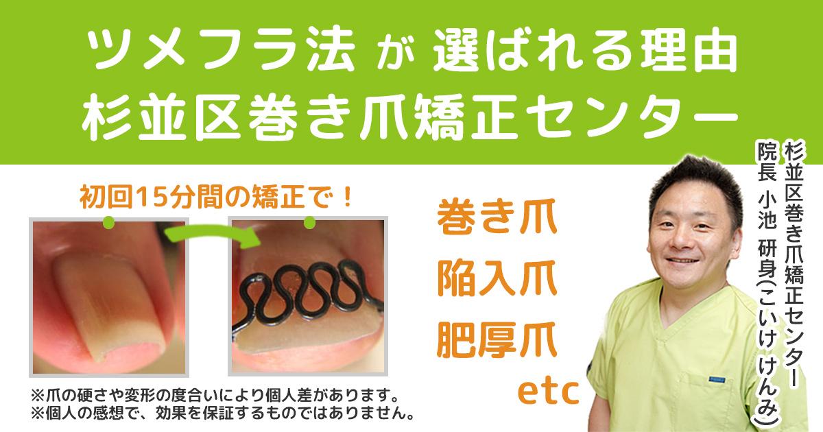 巻き爪矯正治療ツメフラ法とは